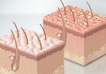 Что делать и как лечить, если постоянно жирная кожа головы
