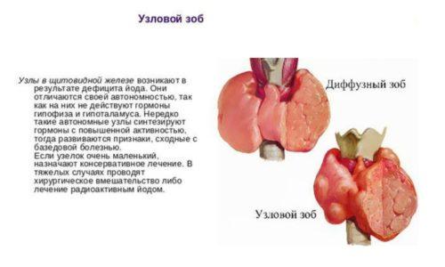 Узловой зоб и диффузный зоб представляют собой увеличение железы в объеме