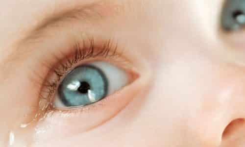 Наличие постоянных слез в глазах ребенка вне зависимости от того плачет он или нет является признаком дакриоцистита