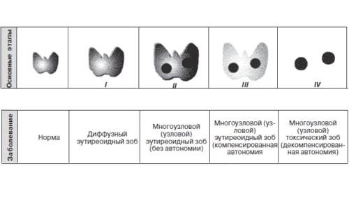 Степени заболевания зоба