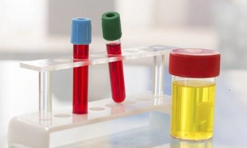 Перед процедурой нужно сдать анализ мочи и крови