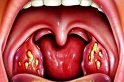 Гнойные язвы в горле при стафилококковой ангине