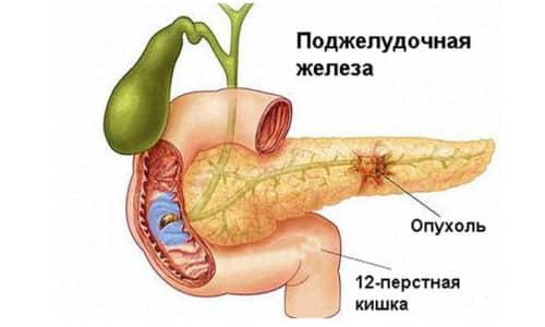 При гиперплазии идет нарушение деления клеток, из-за чего в дальнейшем и образуется опухоль поджелудочной железы. Она может быть доброкачественная или злокачественная