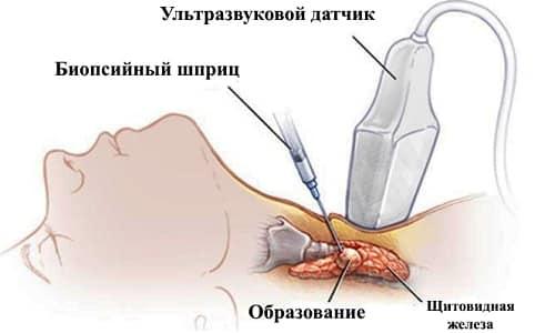 Схема проведения биопсии щитовидной железы