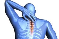 Боли в шейном отделе при остеохондрозе