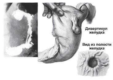 Дивертикул желудка, схема