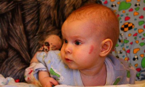 В большинстве случаев капиллярная гемангиома - это врожденное явление