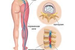 Схема воспаления седалищного нерва