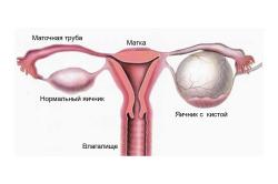 Схема фолликулярной кисты яичника