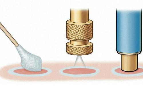 Самым распространенным методом является криодеструкция - воздействие низкими температурами