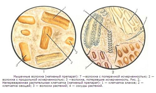Микроскопическое исследование кала