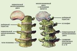 Схема шейного хондроза