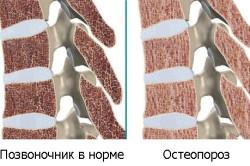 Схема остеопороза позвоночника