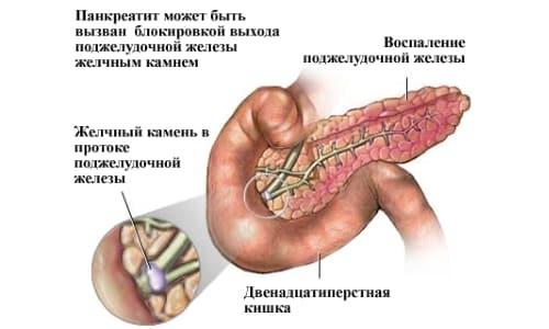 Камень в проводящих путях - возможная причина панкреатита