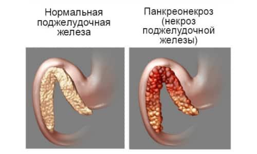 При панкреонекрозе разрушаются все виды тканей железы