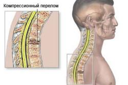 Схема компрессионного перелома позвоночника