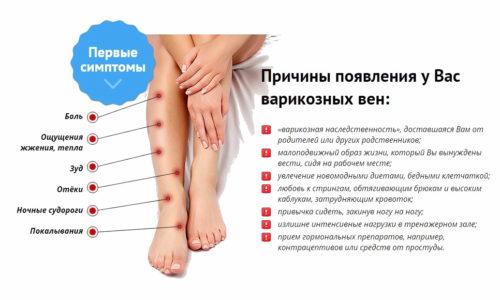 Люди, имеющие унаследованный дефект венозных клапанов и недостаточность соединительной ткани, больше всего подвержены варикозу