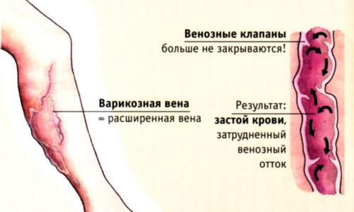 Грамотное лечение варикоза яблочным уксусом позволяет укрепить стенки сосудов, устранить отечность, нормализует работу кровеносной системы