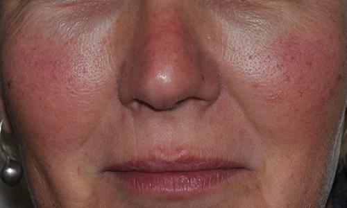 «Паутинка» на лице проявляется, когда происходит сбой в системе капилляров, в результате чего они расширяются и разрастаются, становятся видимыми невооруженным взглядом
