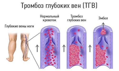 Перед тем как начнет свое развитие тромбофлебит, в венах возникает воспалительный процесс, который протекает в течение длительного времени