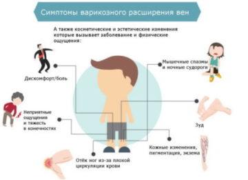 Лечебные и профилактические упражнения при варикозе