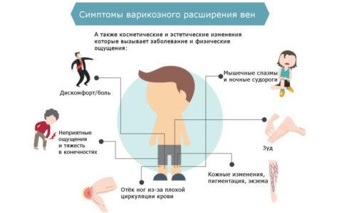 Выполнения специальные упражнения можно существенно облегчить симптомы варикоза
