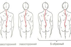 Сколиоз как причина болей