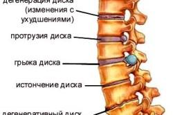 Заболевания позвоночника, провоцируемые повреждениями