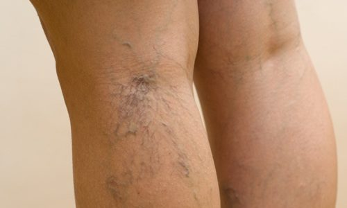 Варикозом называют вздутие вен под кожей человека, которые чаще всего появляются на поверхности мышц ног