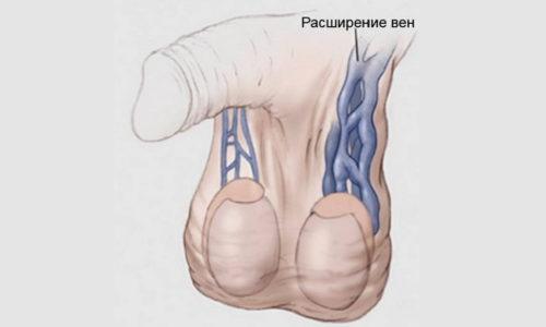 Двухстороннее варикоцеле встречается крайне редко. Левостороннее варикоцеле чаще всего встречается в медицинской практике