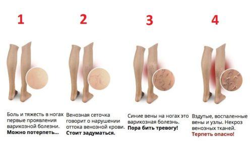 Существует несколько стадий варикозного расширения вен