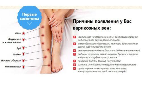 Главными симптомами варикоза являются боли в ногах, судороги, отеки