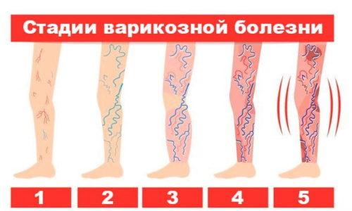Наиболее эффективно применение трав при начальных стадиях варикозной болезни ног