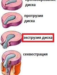 Виды экструзий диска