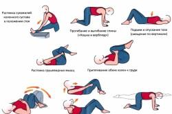 Физические упражнения при боли в пояснице
