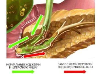 Как проявляется и лечится реактивный панкреатит?