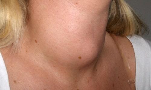 Зоб представляет собой увеличение размеров органа, являясь признаком ряда его заболеваний, выраженных в функциональных нарушениях