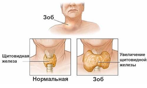 Когда зоб формируется при недостатке йода, то дополнительно развивается гипотиреоз